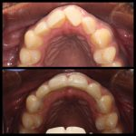 Upper teeth with and without Lingual braces - Viva Dental Studio, Hornchurch