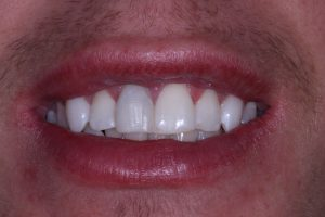 Broken tooth fixed and teeth whiteneing treatment complete - Viva Dental Studio, Hornchurch