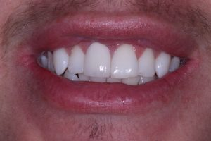 Complete crown fixed - Viva Dental Studio, Hornchurch