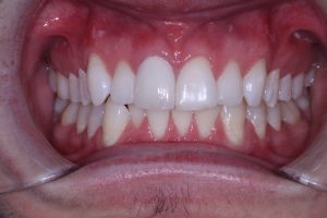 Complete crown fixed - Viva Dental Studio, Essex