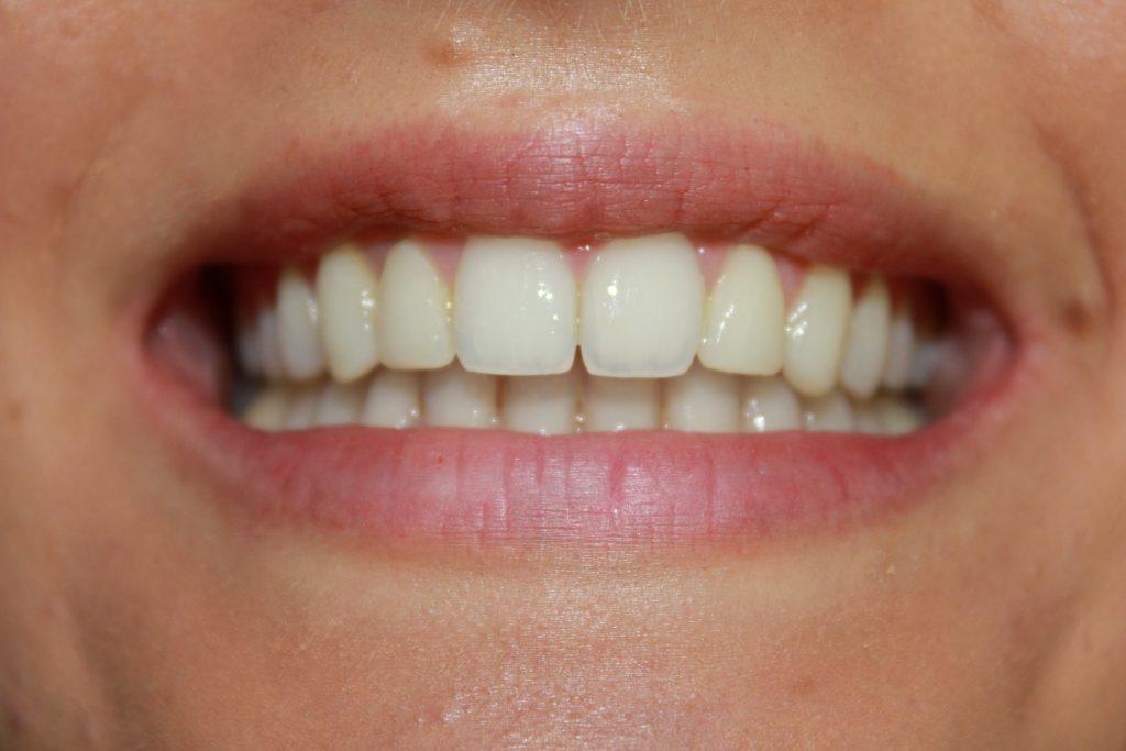 After Bonding Viva Dental Studio Essex