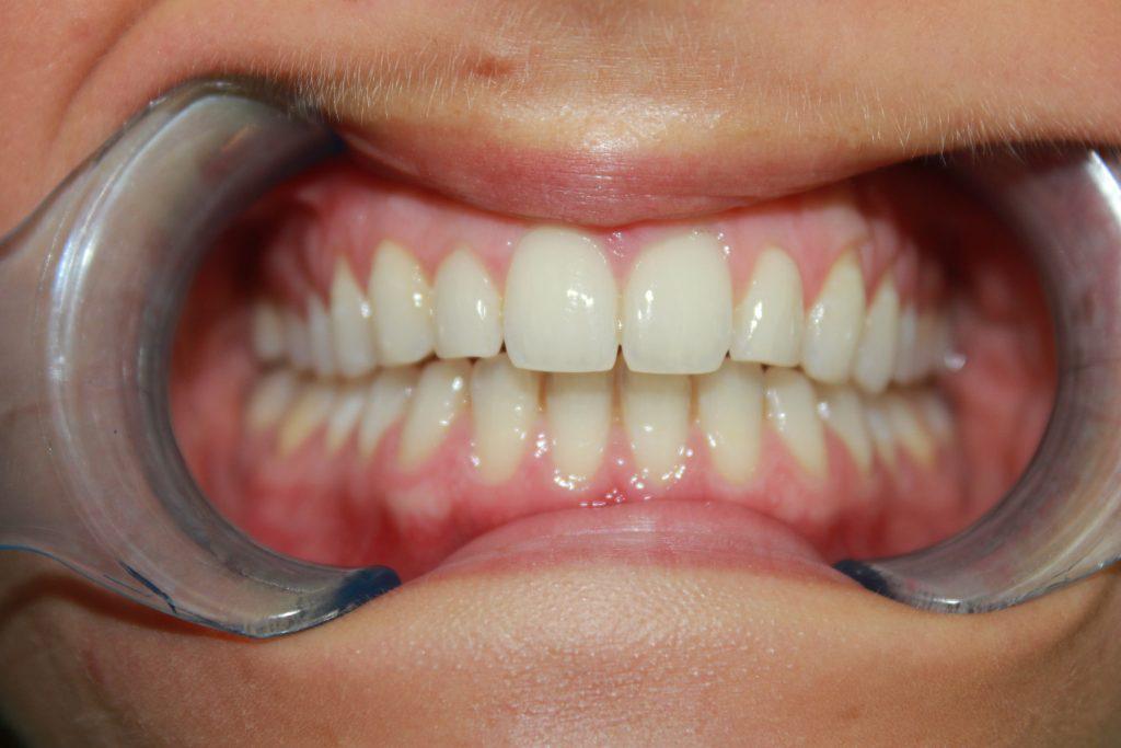After Braces Viva Dental Studio Essex