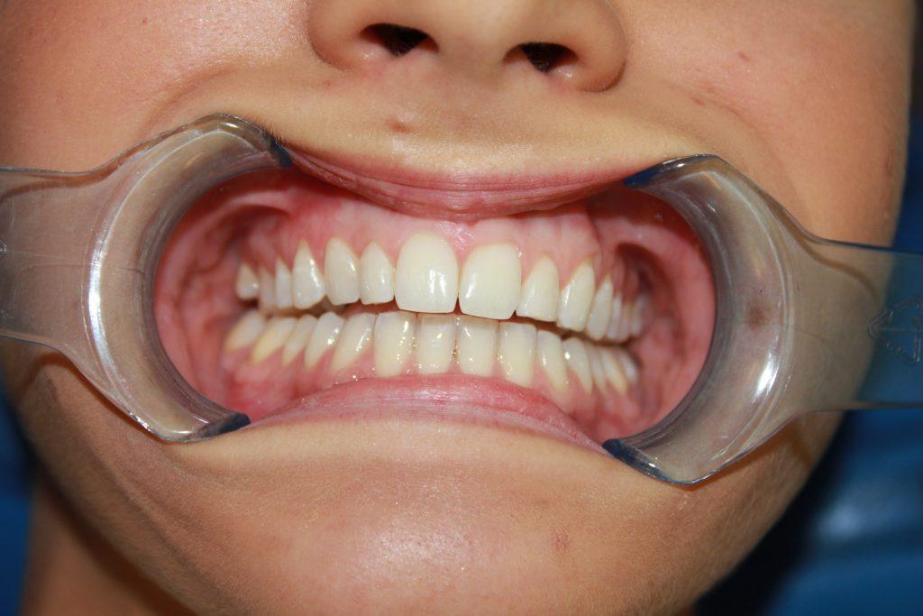 Before Braces Viva Dental Studio Hornchurch