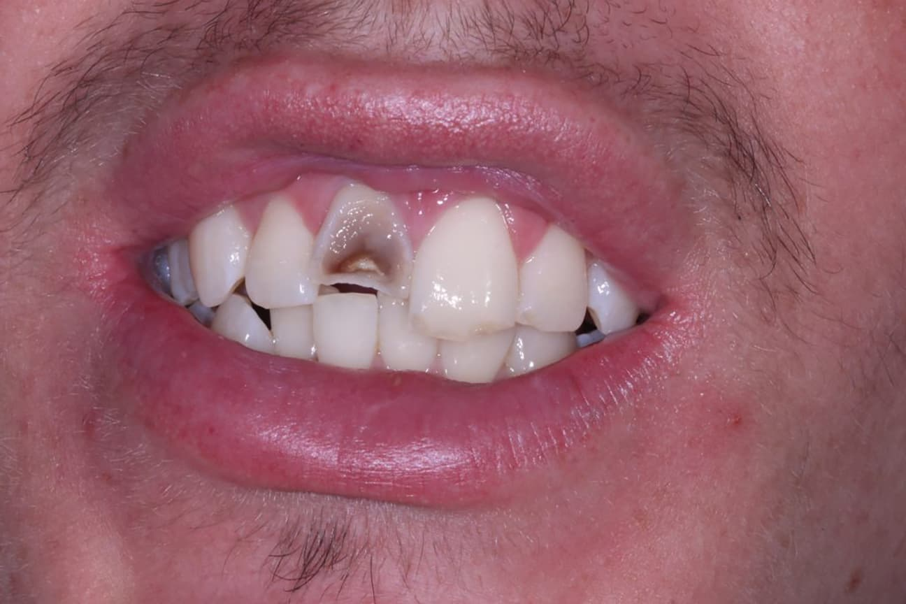 Broken Tooth before Cosmetic Bonding Viva Dental Studio Essex