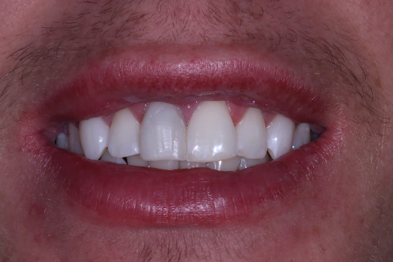 Post Whiting Cosmetic Dentistry Viva Dental Studio Essex